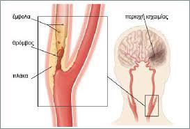 Αρτηριοσκληρωτική νόσος καρωτίδων: αντιμετώπιση και θεραπεία.